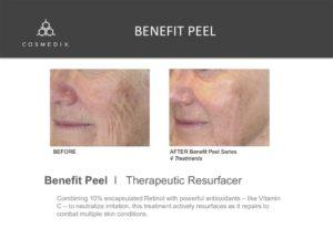 Benefit Peel - Spa Facial