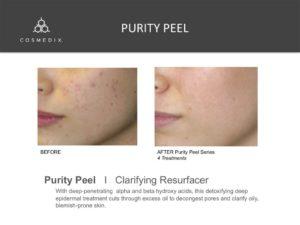Purity Peel - Spa Facial