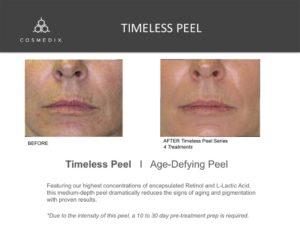 Timeless Peel - Spa Facial